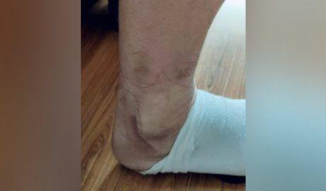赵刚腿上留下的电击疤痕